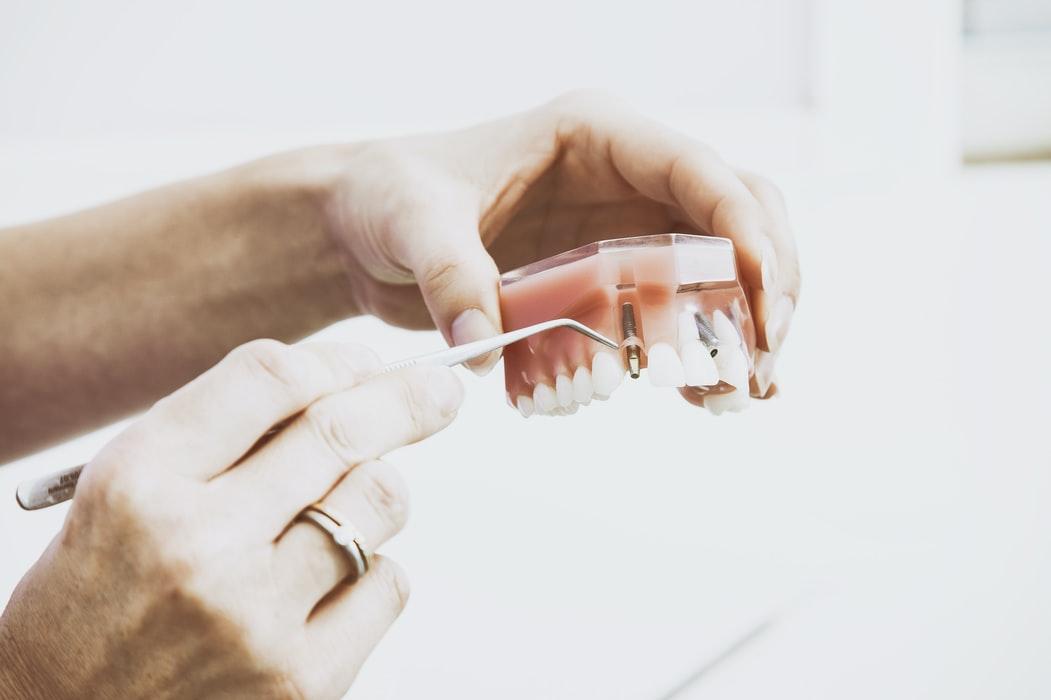 implantes dentales en Vitoria