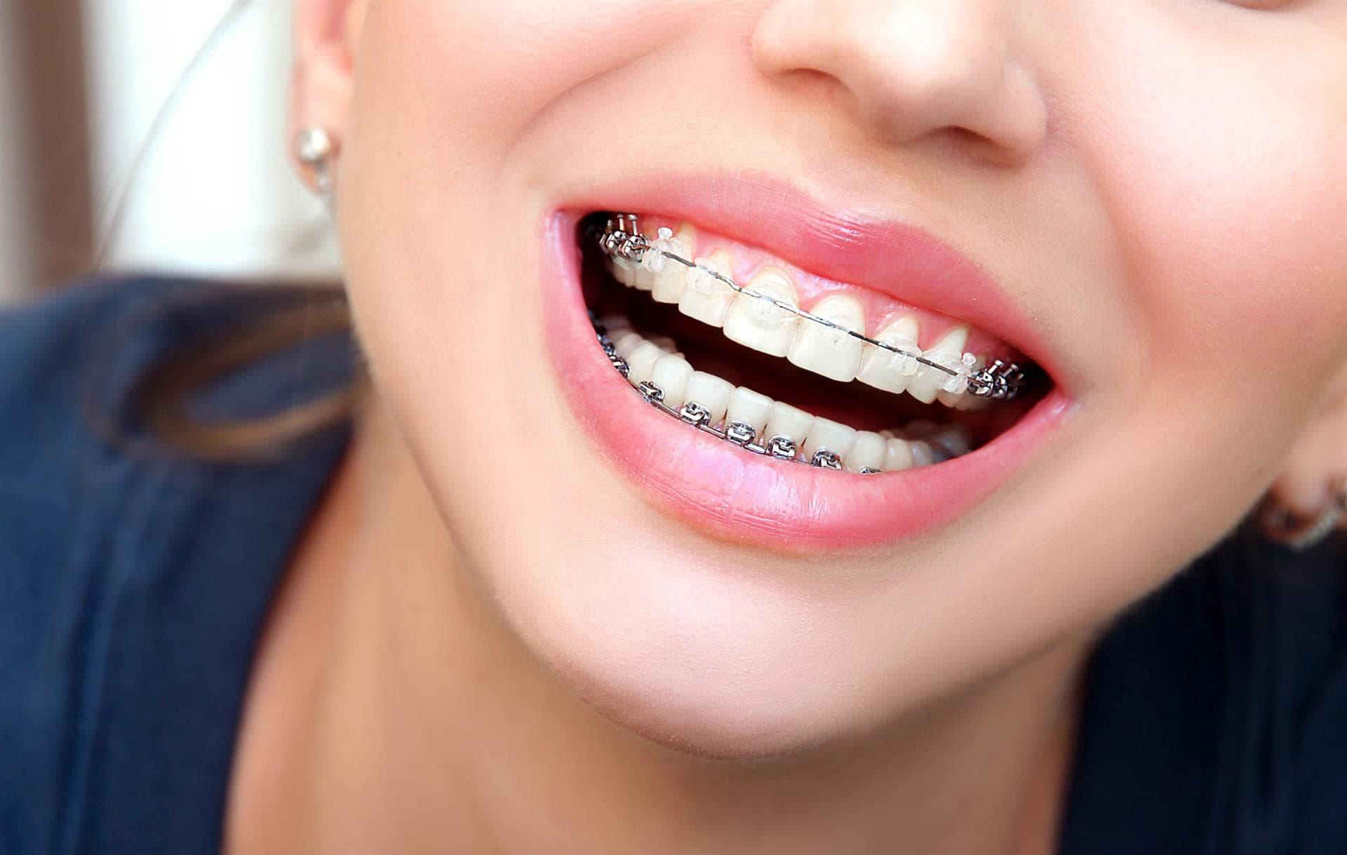 ortodoncia y ortopedia en vitoria