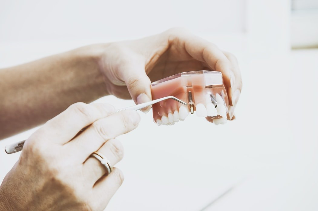 implantes dentales en Vitoria
