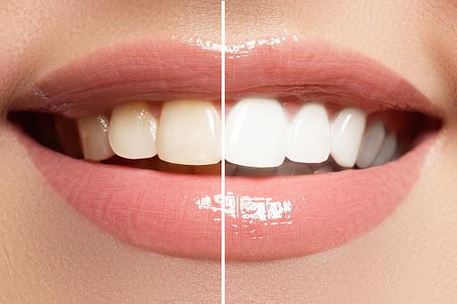 odontologia estetica en vitoria