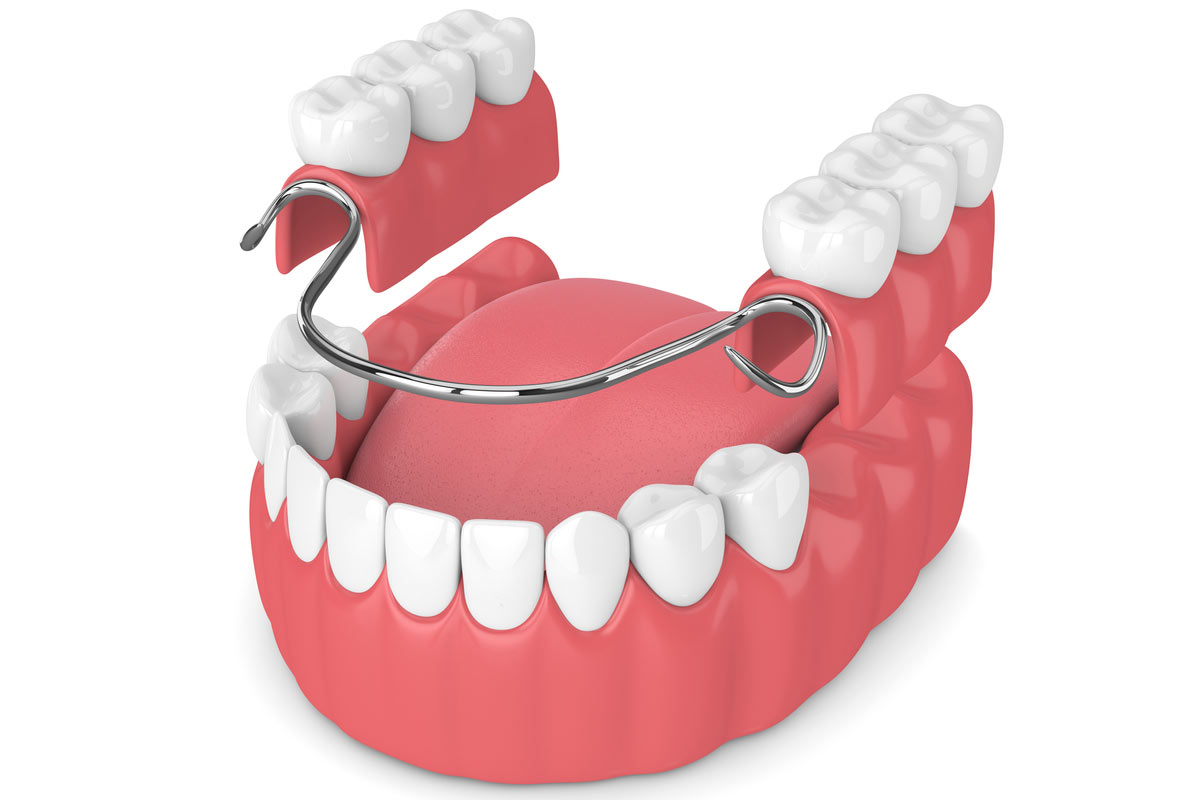 prótesis dental en Vitoria