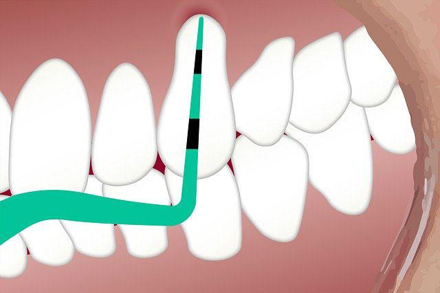 limpieza bucal en un dentista en el centro de Vitoria
