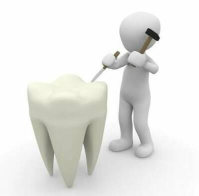 ¿Qué son las carillas dentales? Ventajas e inconvenientes