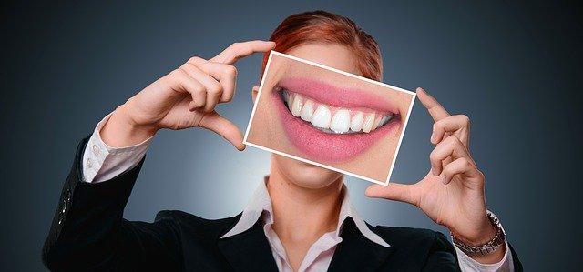 Blanqueamiento dental. Ventajas y tratamiento