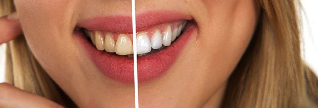 Blanqueamiento dental en Aranbizkarra