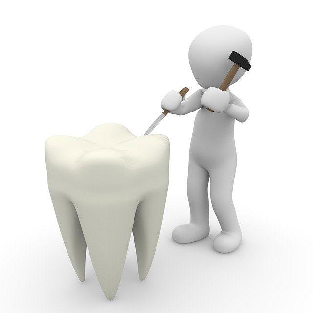 Carillas dentales en Zaramaga
