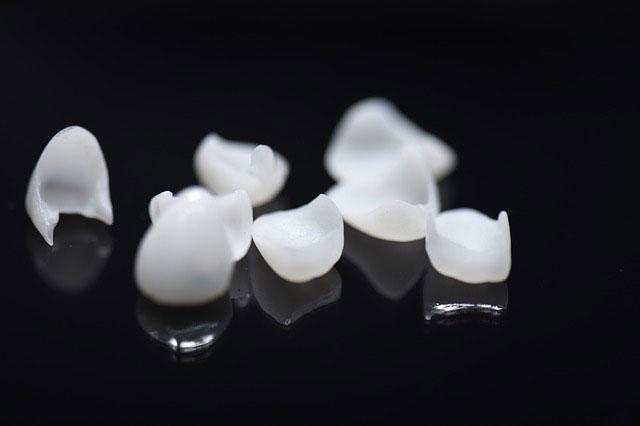 Tipos de carillas dentales en Zaramaga