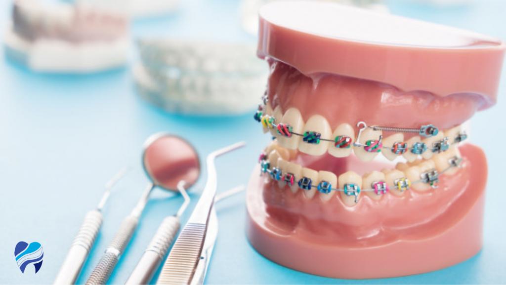 Tipos de ortodoncia Vitoria Gasteiz