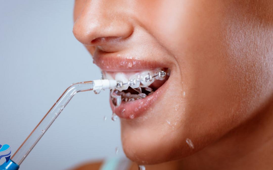 Qué es un irrigador dental y para qué sirve